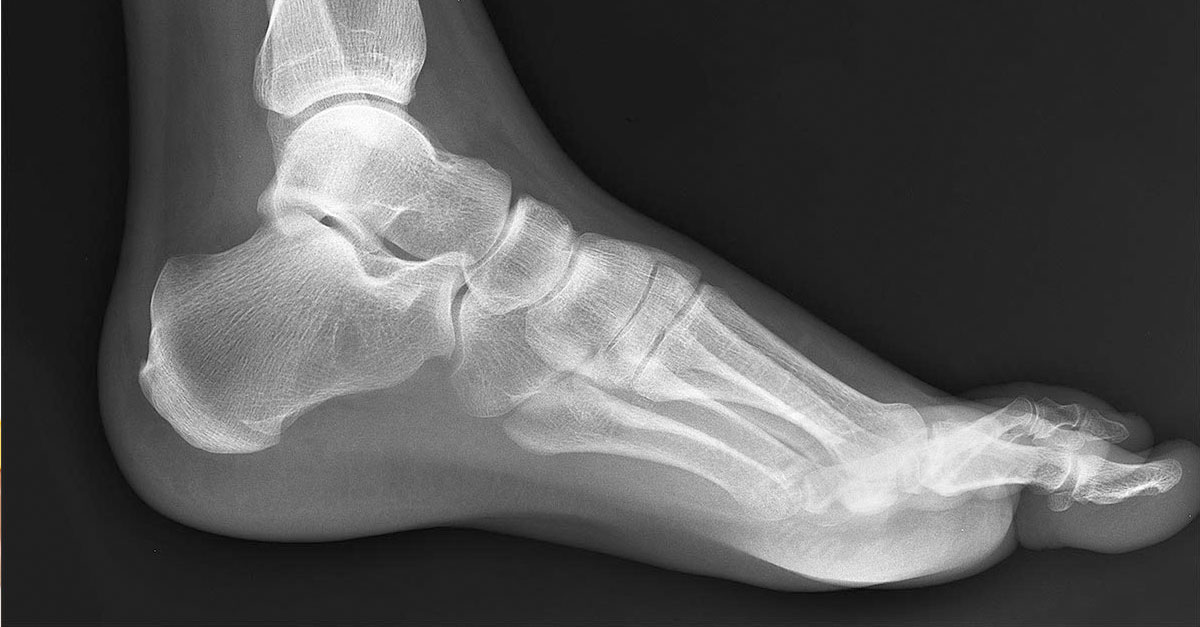boot for stress fracture in foot from running