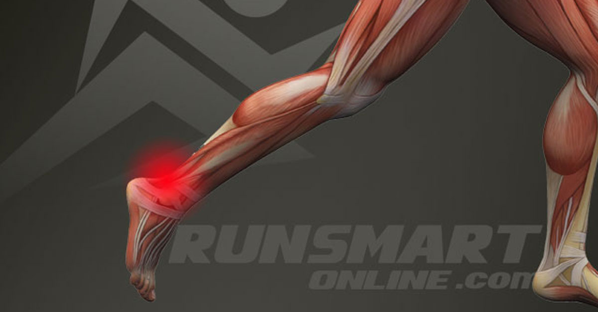 how-to-treat-a-running-injury