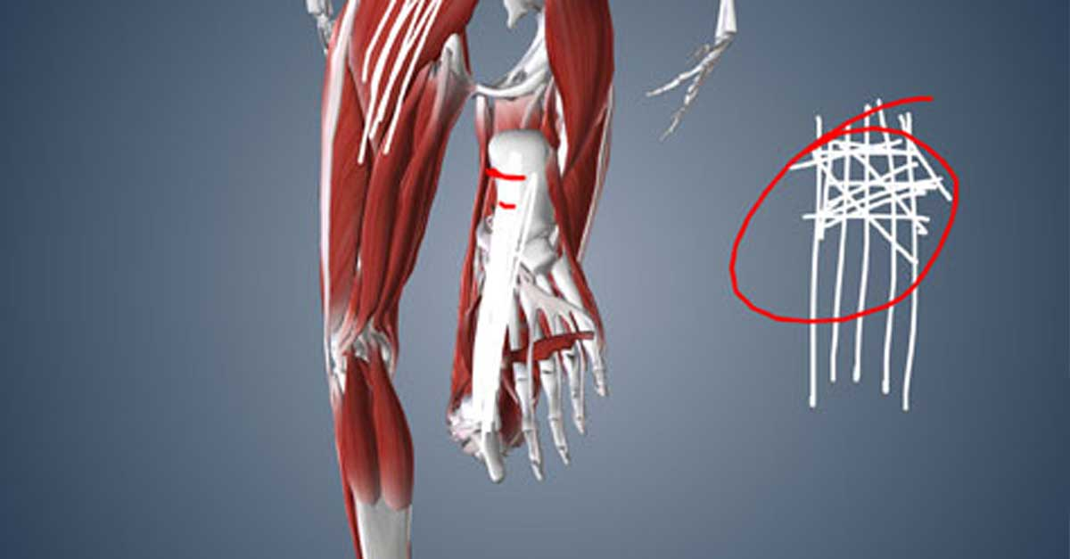what-runners-need-injury-recovery