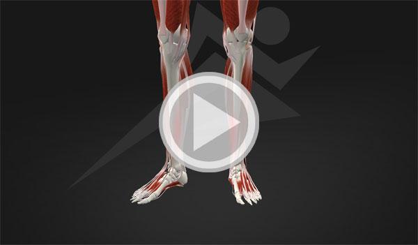 shin-splint-member-video