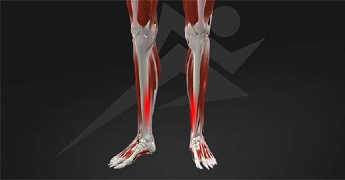 Shin Splint to Stress Fracture: Cause & Prevention - RunSmartOnline.com